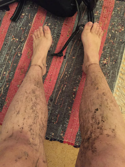 Leriga ben efter MTB 3
